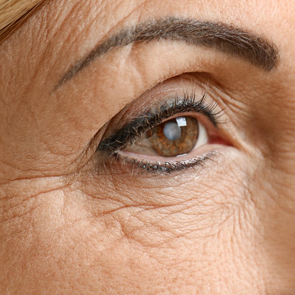 cataracts surgeon manhattan