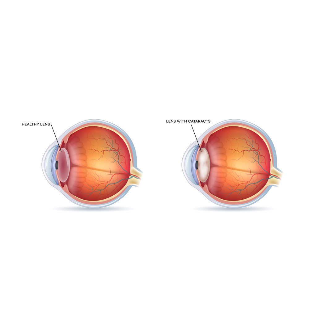 cataracts specialist nyc